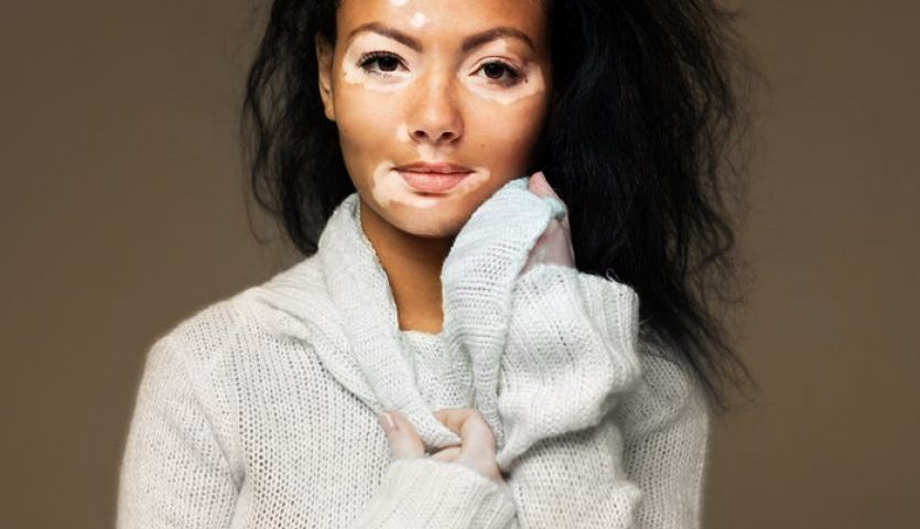 Cover Up Vitiligo