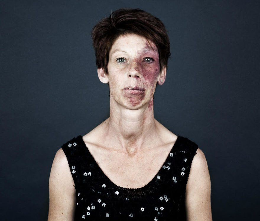 Make up to cover birthmarks